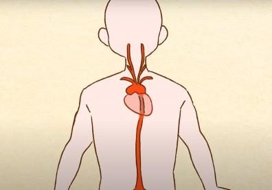 致命的不定時炸彈「主動脈瘤」!建議高風險族群透過腹部超音波診斷