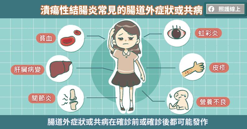潰瘍性結腸炎常見的腸道外症狀或共病。