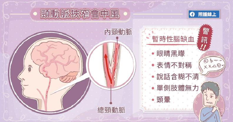 頸動脈狹窄會中風。
