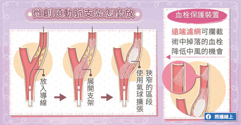 微創頸動脈支架怎麼放?