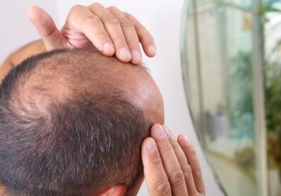 換季掉髮怎麼辦?雞皮疙瘩竟然可以幫助生髮,研究還登上國際期刊