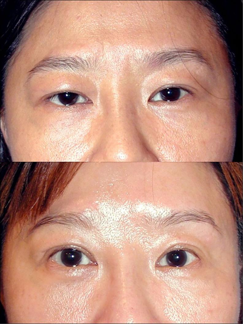 臥蠶讓眼神溫柔有笑意,保留臥蠶是眼皮手術很重要的課題。林靜芸提供
