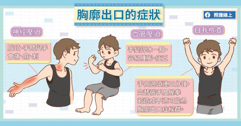 胸廓出口的症狀。