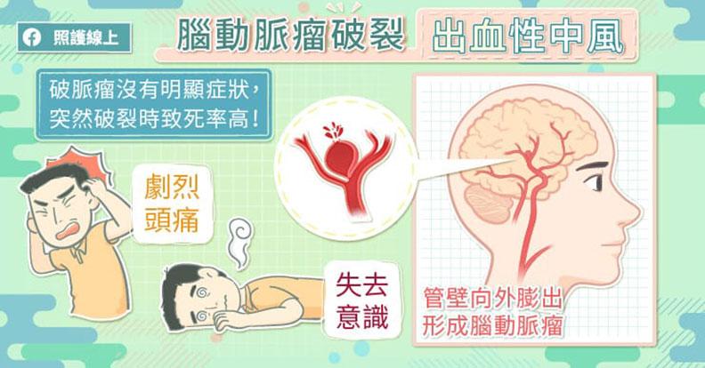 腦動脈瘤破裂 出血性中風。取自照護線上