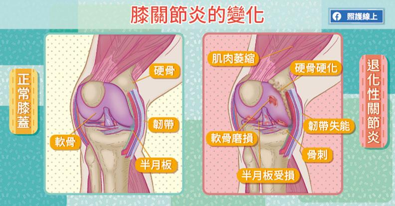 膝關節炎的變化。取自照護線上