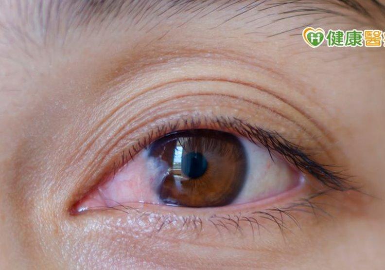 眼睛白白一層以為白內障,其實是眼翳!長在眼睛表面,嚴重恐影響視力