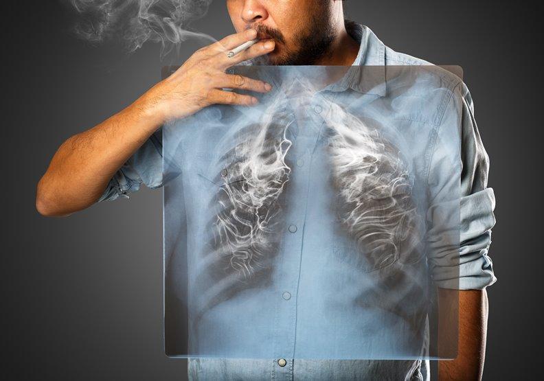 精準醫療讓肺癌只是一種慢性病!用藥順序正確,接力治療就能延續生命