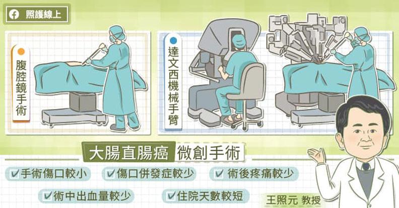 大腸直腸癌微創手術。取自照護線上