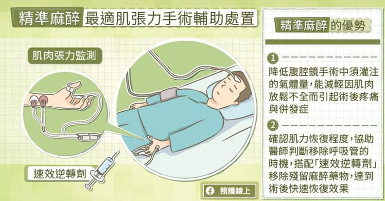 精準麻醉最適肌張力手術輔助處置。取自照護線上