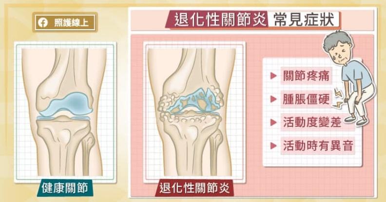 退化性關節炎常見症狀。取自照護線上