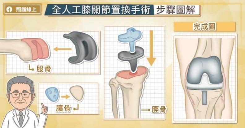 全人工膝關節置換手術步驟圖解。取自照護線上