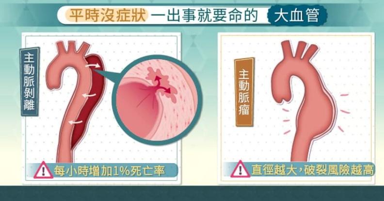 平時沒症狀,一出事就要命的大血管。取自照護線上