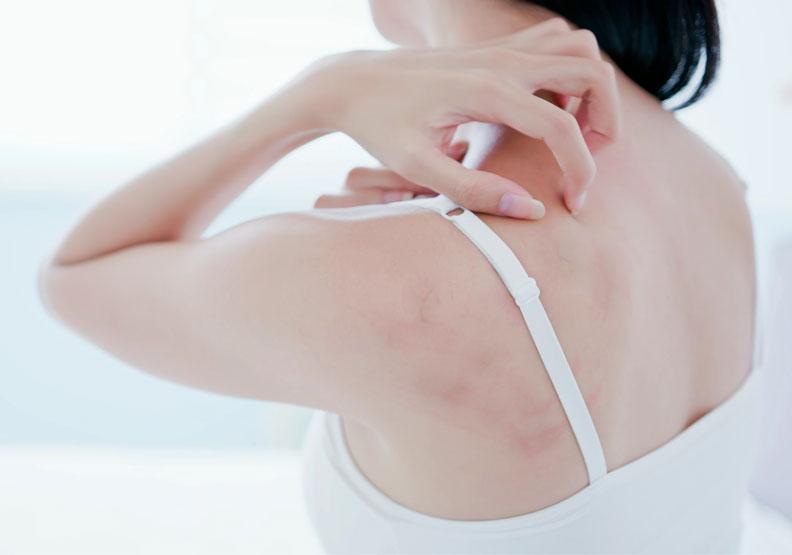 疫情引憂心!異位性皮膚炎、過敏體質,能施打新冠疫苗嗎?