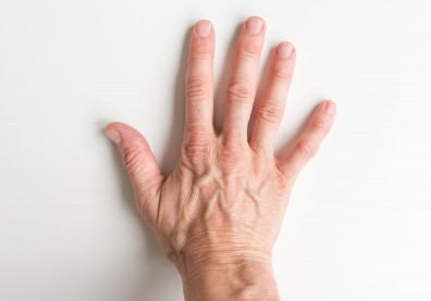 常爆青筋?小心可能有微循環障礙,罹患三高、腦中風機率大增