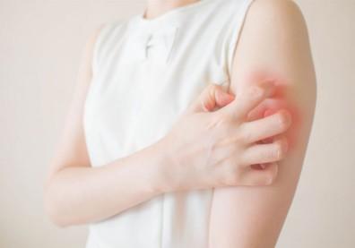 皮膚癢、起疹子?想擺脫蕁麻疹,先少吃這些「高組織胺食物」