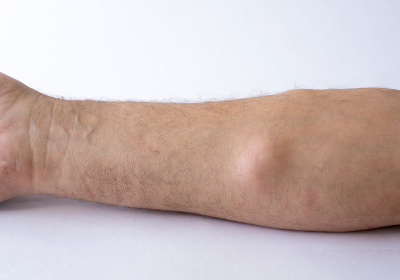 脂肪瘤是因為體脂肪太高?會不會有惡性可能?醫師圖解懶人包