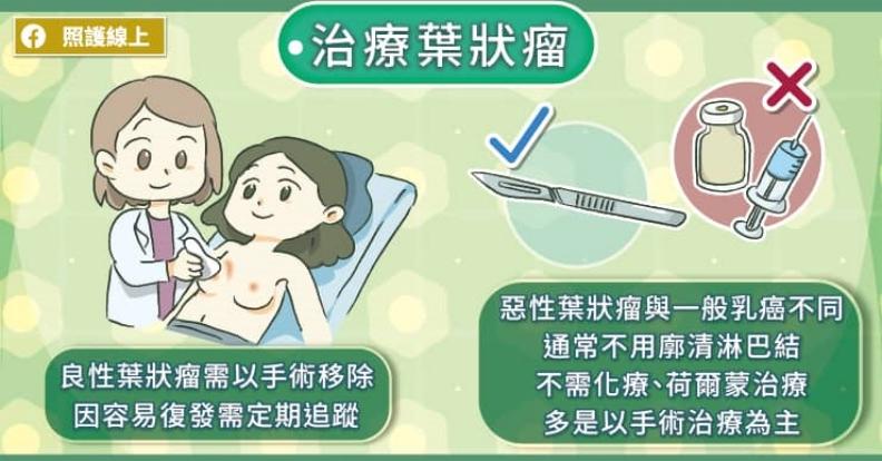 治療葉狀瘤。取自照護線上