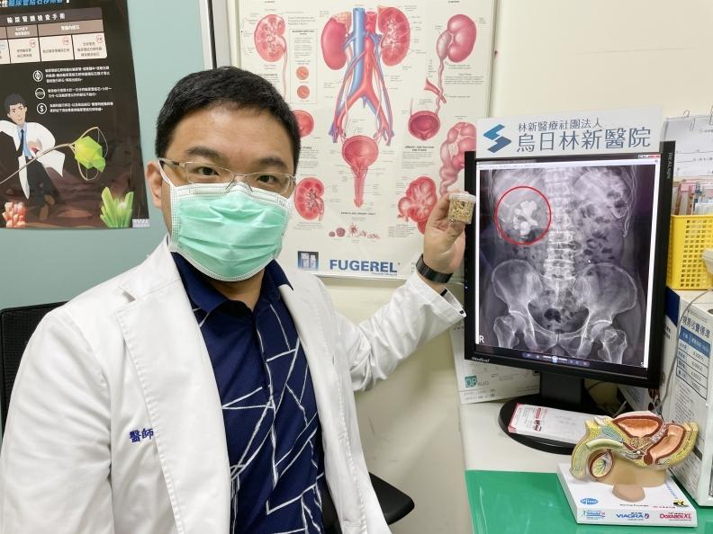 烏日林新醫院泌尿科蕭惟中醫師表示,鹿角形腎結石大多是結石長期阻塞所造成,發生率大約佔了10~15%,是腎結石中較難處理的結石類型。烏日林新醫院提供