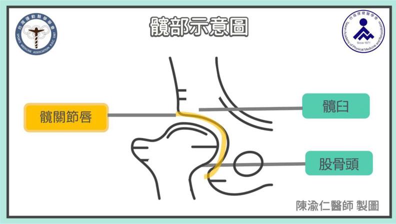 髖部示意圖。台灣運動醫學學會提供