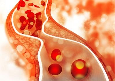 膽固醇偏高別輕忽!血脂超標血管就遭殃,醫師圖文重點提醒
