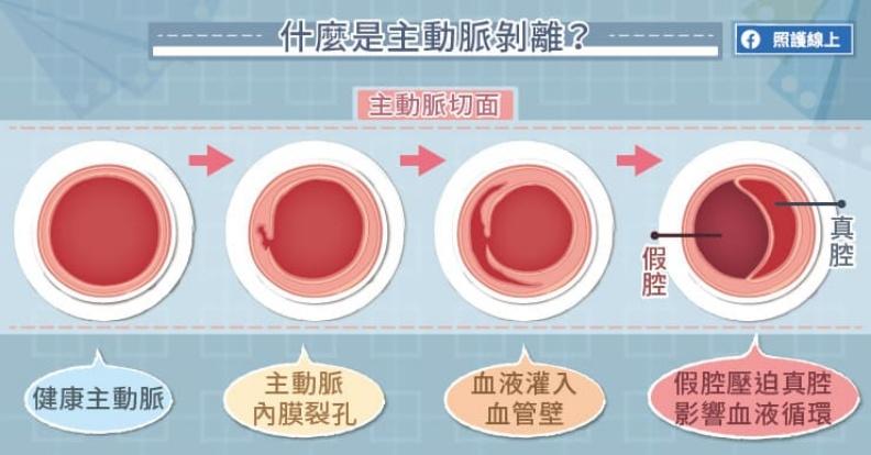 什麼是主動脈剝離?取自照護線上
