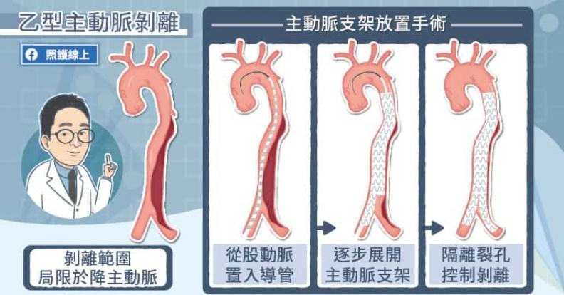 乙型主動脈剝離。取自照護線上