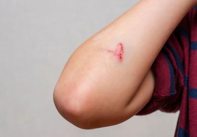 能隨時間降解,不必更換、移除?淺談治療「慢性傷口」的奈米纖維貼片