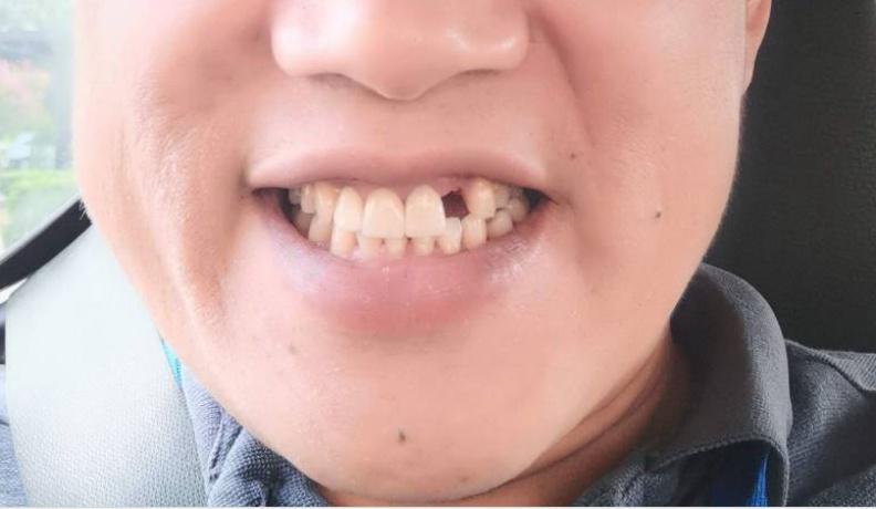 統計發現,牙齒脫落的程度和認知功能之間存在顯著的負相關,亦即牙齒掉落的越嚴重,腦機能傾向會變得越差。柯俊銘心理師提供