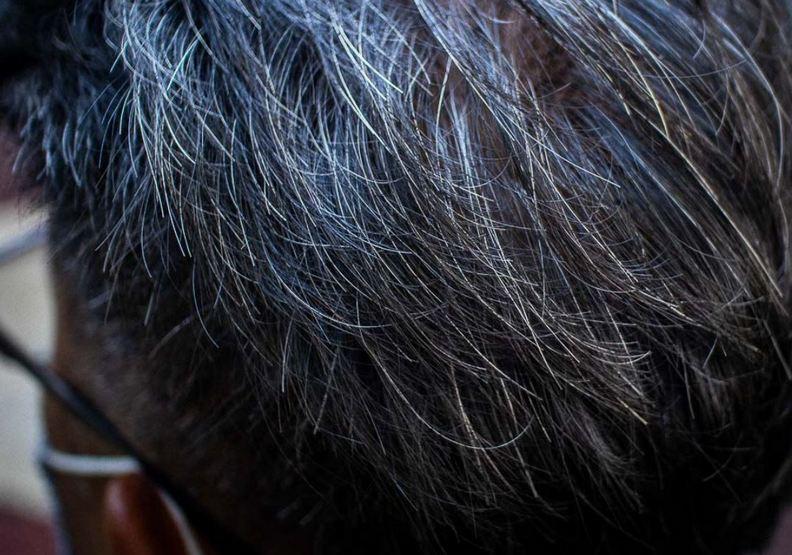 許多人因為工作壓力大,而導致整頭白髮。ricemedia