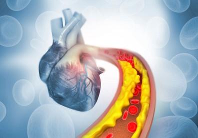 血脂超標傷心又傷腎!防壞膽固醇、三酸甘油脂「翹翹板效應」這樣做