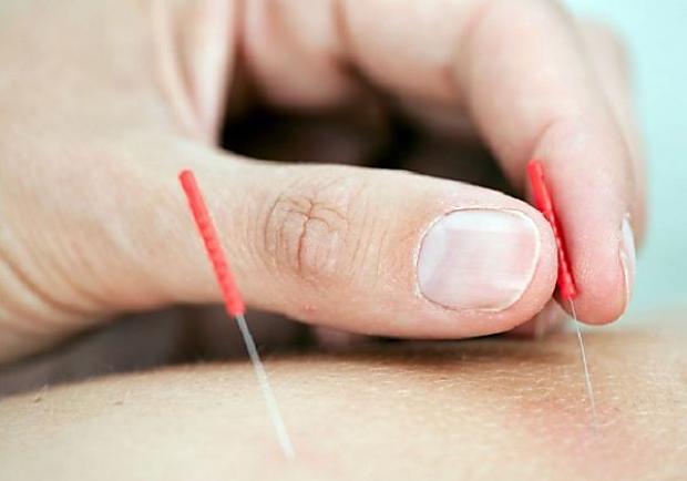 全球首次證實,針灸可預防中風復發