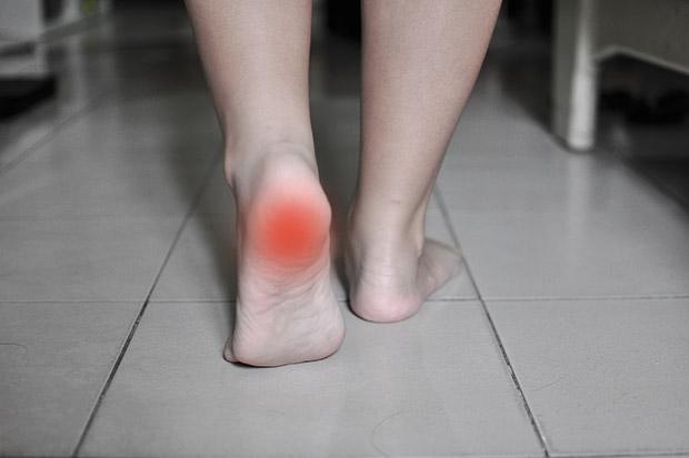 保持運動習慣,為何還是罹患足底筋膜炎?