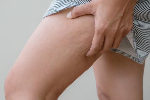 85% 女性都會面臨的問題!橘皮的成因、治療與預防