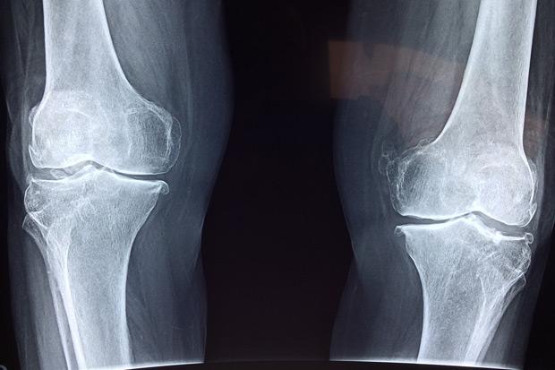 退化關節炎幹細胞治療可以取代人工關節置換嗎?