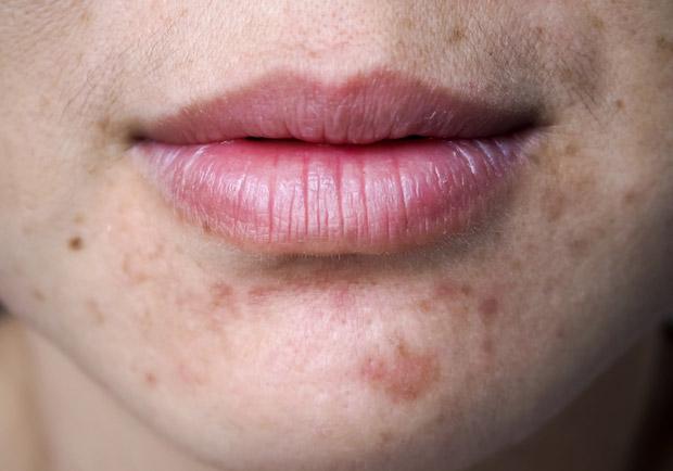 皮膚是臟腑的鏡子!青春痘長哪裡有關係