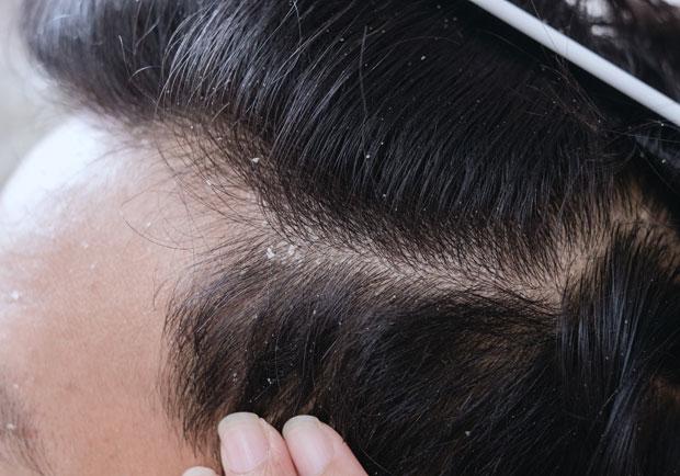 紅腫發炎又脫屑,脂漏性皮膚炎如何保養及根治?