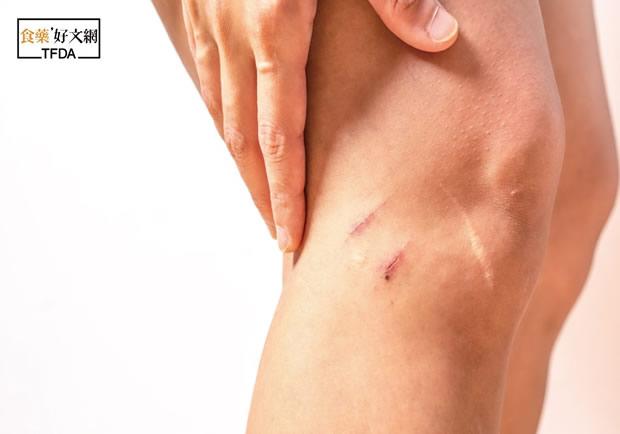 撫平淡化傷痕,去疤凝膠有用嗎?