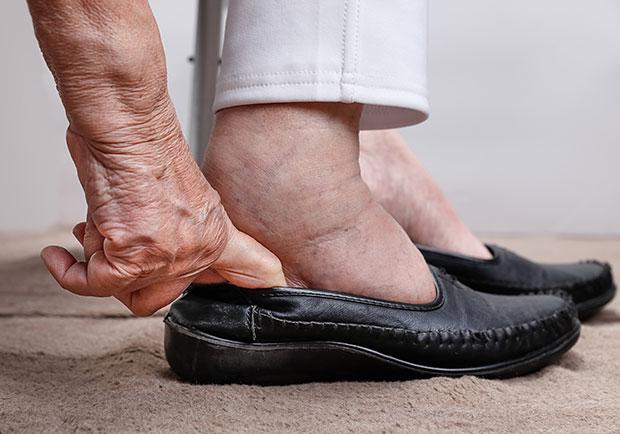 足踝專科醫師:糖尿病足病變最大原因可能是穿錯鞋!