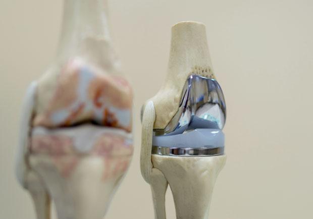 人工關節置換手術的感染防治