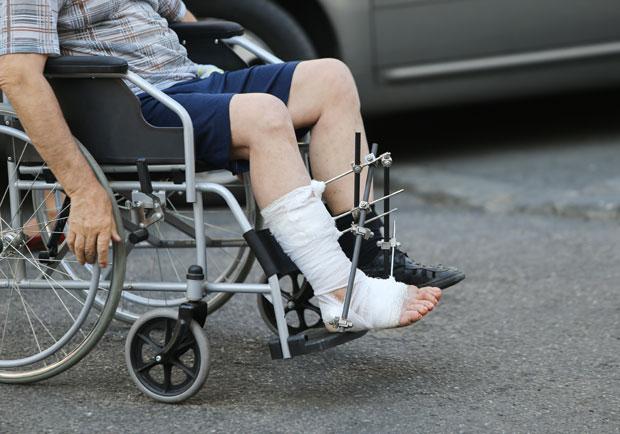 跟骨骨折若不當治療,當心變成「香蕉腳」終生跛腳