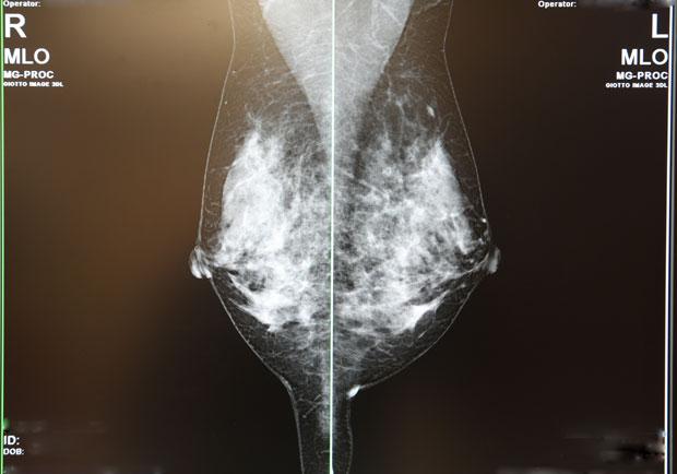勇敢接受篩檢,X光檢查早期乳癌最靈敏有效