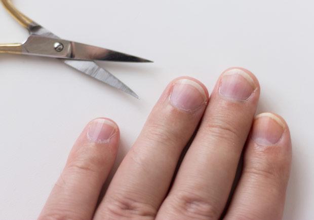 甲溝炎不是把邊緣剪掉就會好!凍甲患者的 2 種治療方法