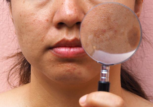 肝病不等於肝斑?原來是皮膚病