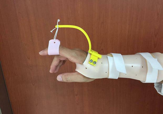 職能治療之副木製作與3D列印之應用