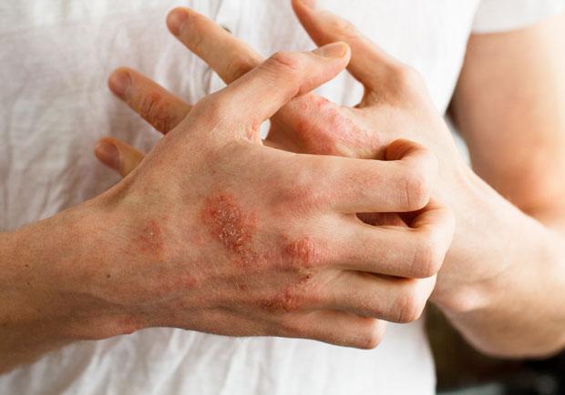 濕疹如何預防、保養與根治?醫師 3 關鍵完整解答