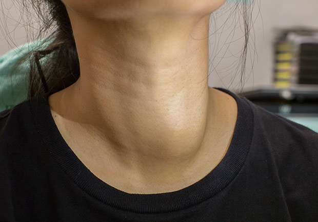 甲狀腺癌多好發於女性,出現這些症狀快就醫診斷