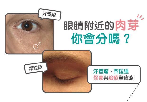 眼睛附近的肉芽你會分嗎?汗管瘤、粟粒腫的保養與治療全攻略
