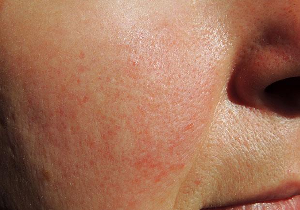 臉紅不是害羞,酒糟性皮膚炎患者飲食刺激不可忽視