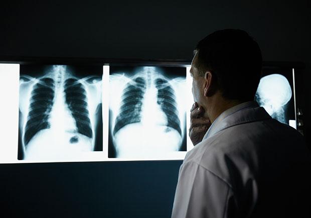 胸部X光發現肺結節,良性、惡性如何界定?